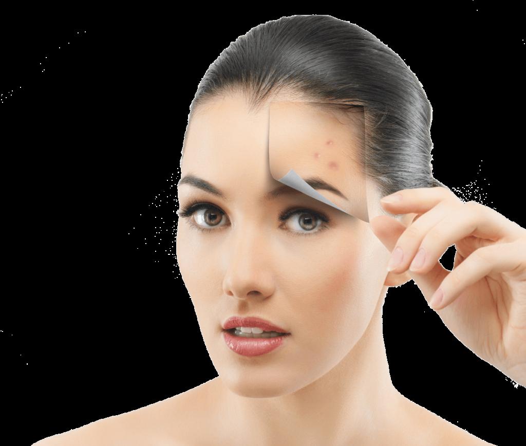 Active Acne & Acne Scars